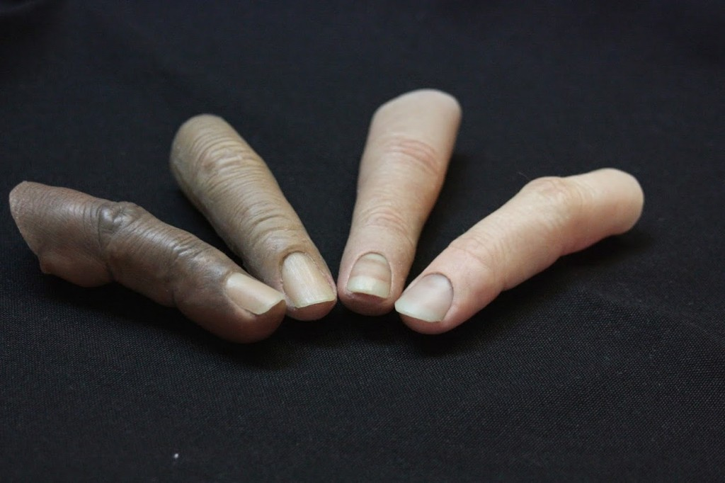 Why Custom Finger Prostheses?