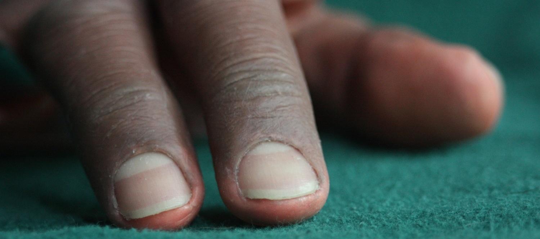 Dermatos® Prosthesis